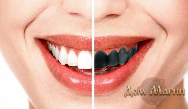Черные зубы во сне